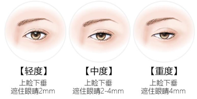 上眼皮下垂有哪些方法能改善呢